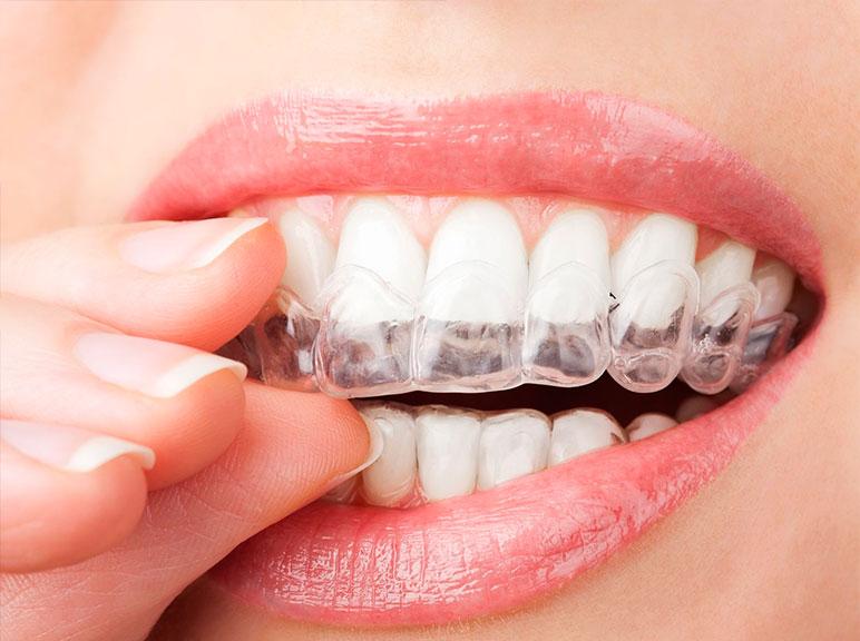 Брекеты или элайнеры: что выбрать для исправления зубов? -  Стоматологическая клиника Дента